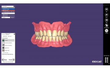 Модуль Exocad Full Denture